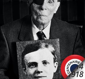 Première Guerre mondiale : traumatismes